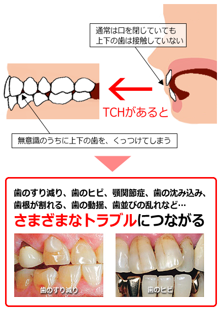 Tooth Contacting Habit:TCH(歯列接触癖)